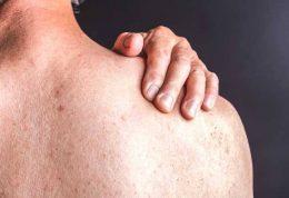 درمان انواع عارضه های پوستی در افراد ورزشکار