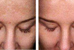 پیشگیری و درمان خال های روی پوست