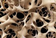 افزایش استحکام استخوان ها در سنین کودکی