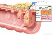تاثیر برخی داروها در بروز سرطان روده