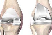 جراحی تعویض مفصل زانو چیست؟