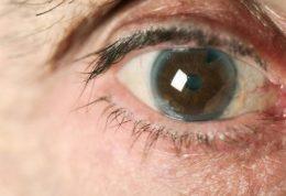 عوارض آب سیاه برای بینایی