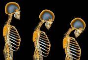 راهنمایی های پزشکی پیرامون پوکی استخوان