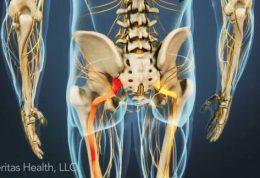 تخفیف درد سیاتیک با طب سنتی