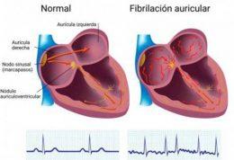 قد بلندها و امراض قلبی