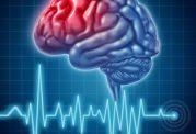 انواع سکته مغزی چیست؟