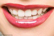 ارتباط دندان سالم و طول عمر در خانم ها