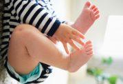 چه عاملی سبب پرانتزی شدن پاهای کودکان می شود