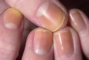 بیماری های مرتبط با زرد رنگی ناخن