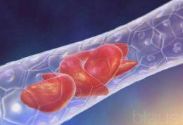 مهندسی ژنتیک و درمان کم خونی داسی شکل