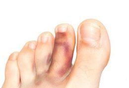 چگونه انگشت پای شکسته را التیام بخشیم