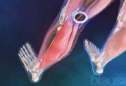 درمان درد در نواحی مختلف پاها با حرکات کششی