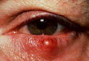 ترفندهای پیشگیری از رشد گل مژه روی چشم