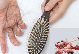 چه بیماری هایی باعث ریزش موها می شوند؟