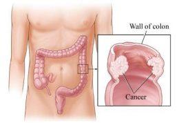 هشدارهای بدن برای سرطان روده بزرگ
