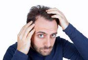درمان های طبیعی برای ریزش موهای چرب