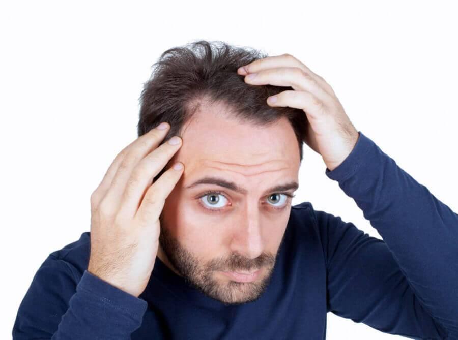 درمان ریزش موهای چرب