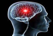 زنگ خطرهای بدن برای سکته مغزی