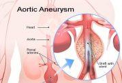 توضیحات پزشکی درباره آنوریسم قلبی