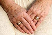 لکه های پوستی به نام آنژیوما