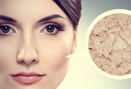 درمان خشکی پوست با استفاده از ماست
