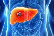دارویی جدید برای درمان شایع ترین نوع سرطان کبد
