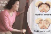 روزه گرفتن مبتلایان به بیماری پارکینسون