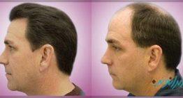 بهترین کلینیک تخصصی کاشت مو کدام است ؟