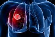 بررسی علل و روش های درمانی مهم برای امراض سرطانی