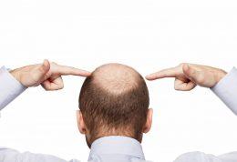آمینکسیل محصولی تاثیرگذار بر ریزش مو