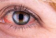 ارتباط لکه های درون چشم با دیابت