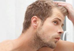 ارتباط طاسی و کم مویی و اضطراب مردان