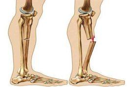 استفاده از قرص ال آرژنین برای کمک به درمان شکستگی استخوان