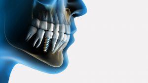 عوارض ایمپلنت دندان چیست؟