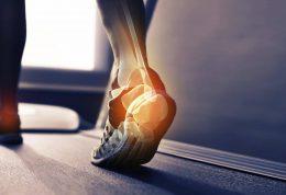 چرا در هنگام پیاده روی پاشنه ها دچار آسیب می شوند؟