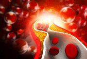 مشکلات بالا رفتن تری گلیسرید خون
