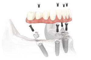 مراقبت از ایمپلنت دندان – قبل و بعد عمل