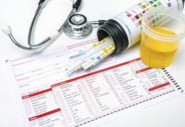 آزمایش تشخیص عفونت ادراری