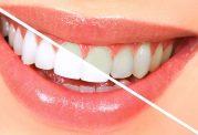 زرد شدن دندان ها از علت تا درمان
