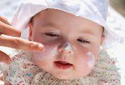 پوست کودکان بیش از بزرگسالان به مراقبت احتیاج دارد
