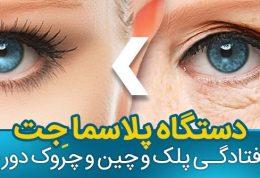 درمان افتادگی پلک به روش پلاسما