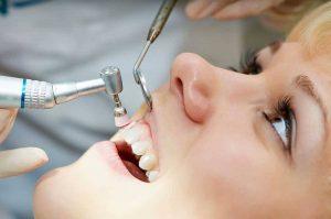 جرم گیری دندان با روش اولتراسونیک