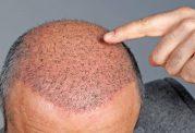تمام مواردی که باید در خصوص کاشت مو بدانید