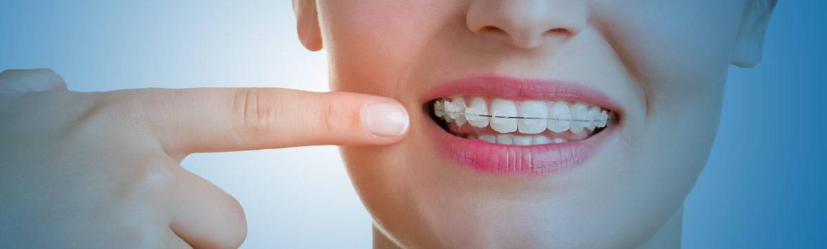 ارتودنسی و ایمپلت دندان