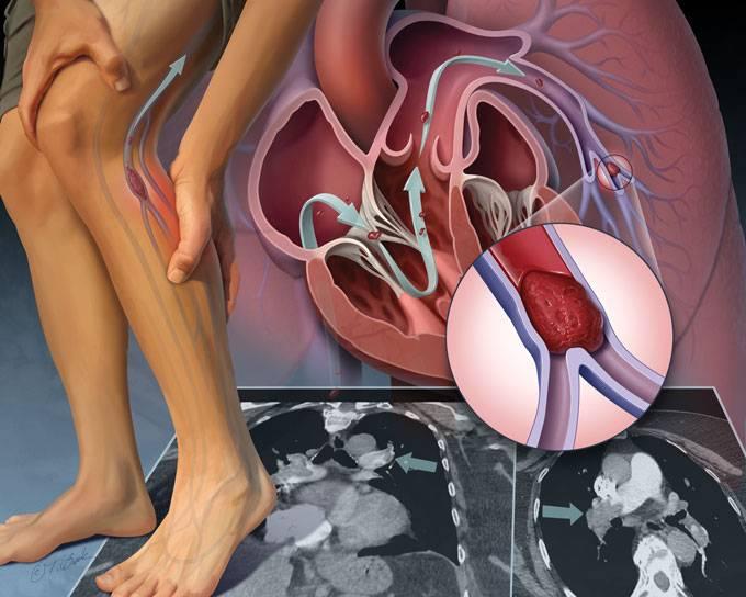 آمبولی چیست و چه علائمی دارد؟