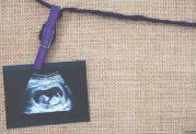 سقط جنین و علل مشکلات روانی بعد از آن