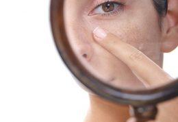 بهترین درمان برای منافذ باز پوست کدام است؟