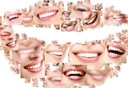اصلاح طرح لبخند و زیبایی خنده