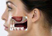 پیوند استخوان ایمپلنت دندان چگونه انجام می شود؟