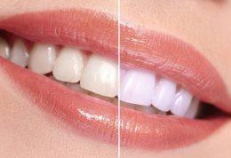 جرم دندان را با روش طبیعی از بین ببرید